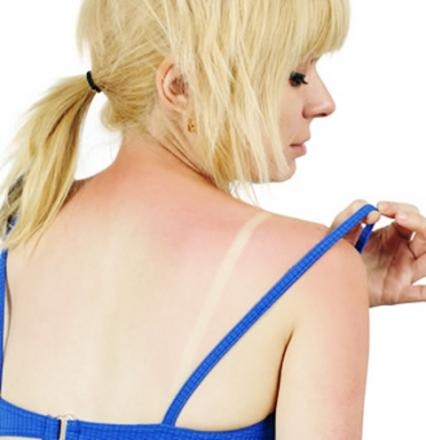 Warning as skin cancer is on the rise in East Lancashire