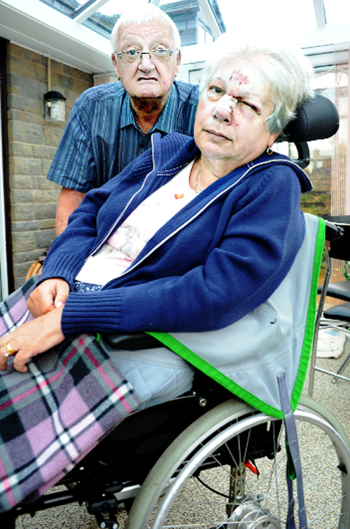 Bernard Parfitt with his wife Marion, who suffered a badly injured nose in the wheelchair accident